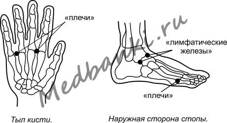 49. Плечелопаточный периартрит, лечение присосками HACI