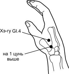 54. Боль в пятке и подошве, лечение присосками Haci