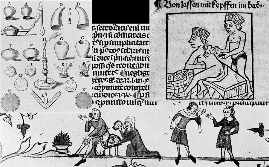 Гравюры с древними методами лечения вакуумом