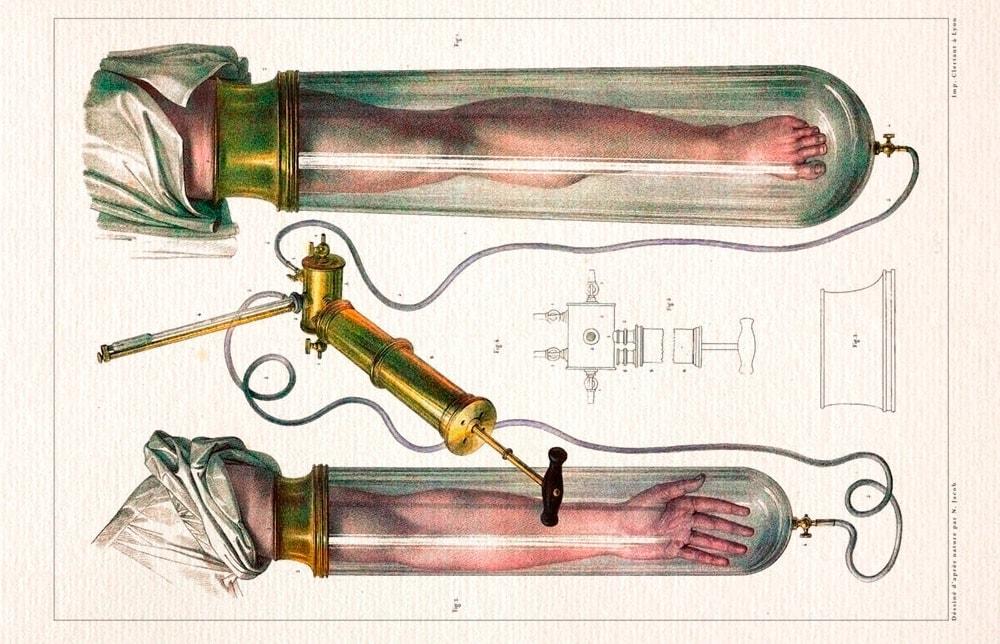 Старая иллюстрация поясняющая метод